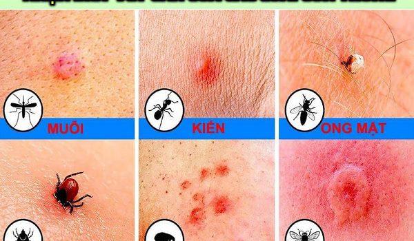 Bị côn trùng cắn sưng phù có nguy hiểm không?